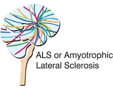 Celebrities With Amyotrophic Lateral Sclerosis Disease