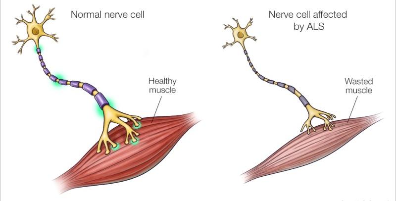 ALS neuron