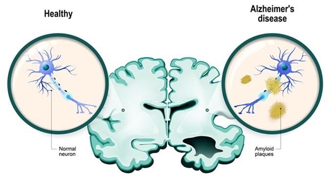 Alzheimer's disease language