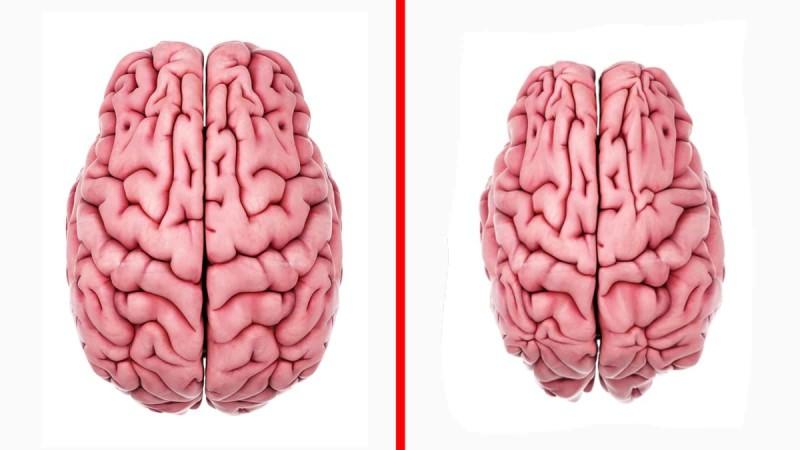 Brain shrinkage stress