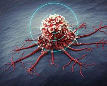 Can miR-182 Molecule Cure Brain Cancer?
