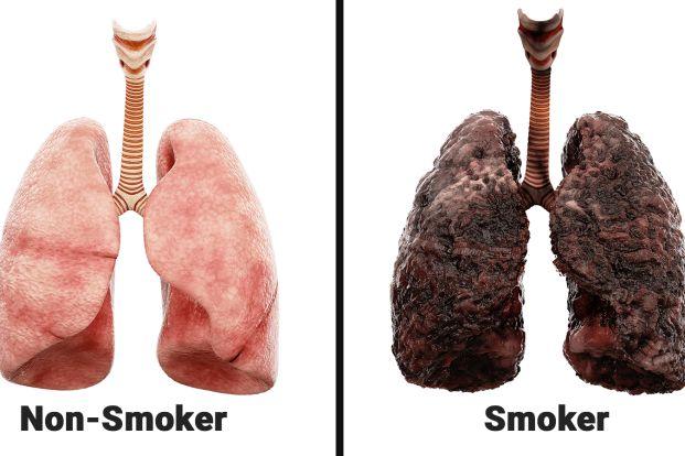 Smoker vs non smoker