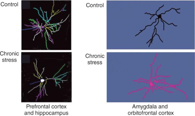 Stress neuroplasticity