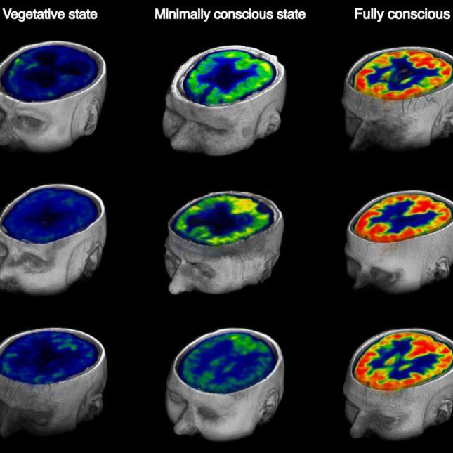 Vegetative state brain compared